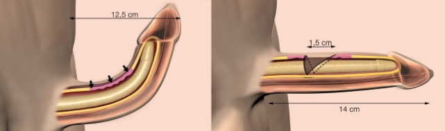 induratio-penis-plastica-chirurgia-allungamento